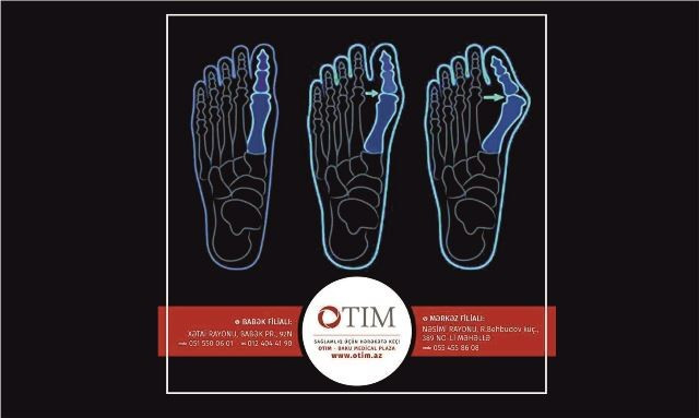 OTIM - Ortopediya & Travmatologiya, İdman Cərrahiyyəsi və Fizioterapiya Mərkəzi